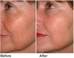 HIFU FaceLift Wrinkle Removal